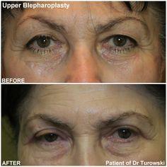 Eyelid Lift, Eyelid Surgery, Plastic Surgery