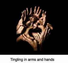 Tingling in arms and hands explains why neurological symptoms should be addressed with greater concern; your chiropractor will be examining you to see if there are also signs like loss of a reflex. Tingling In Fingers, Subclavian Artery, Hand Therapy, Massage Techniques, Hand Art, Neck Pain, Hair Health, Plexus Products, Pay Attention