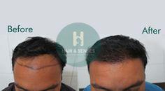 #Best_Hair_Transplant_In_Delhi #Advance_Hair_Treatment  Advance Hair Treatment with excellent results at Hair & Senses  Visit http://www.hairnsenses.co.in/ for FREE CONSULTATION and OFFERS On Hair Transplant