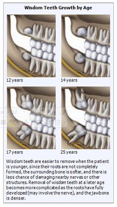 Impacted Teeth / Wisdom Teeth / Third Molars are unerupted or partially erupted teeth that cannot fully erupt due to:Lack of space,tooth is rotated out of position