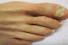 http://healthandcaretips.com/candidiasis-of-skin-and-nails