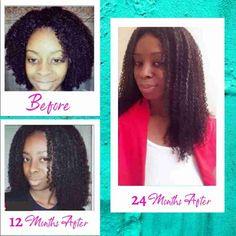 HHB How To Grow Natural Hair, How To Make Hair, Natural Hair Styles, Natural Hair Treatments, Hair Loss Treatment, Natural Hair Regrowth, Hollywood Hair, Hair Thickening, Short Pixie Haircuts