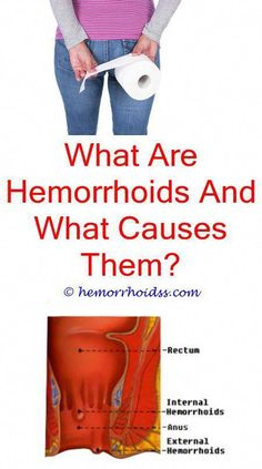 How Many Days Hemorrhoids Last? do you have nerves in hemorrhoids?How To Get Rid Of Internal Hemorrhoids Without Surgery? how to get rid of external hemorrhoid naturally?Do Hemorrhoids Flare Up With Diarrhea? Foot Warts, Warts On Hands, Warts On Face, Get Rid Of Warts, Remove Warts, What Causes Warts, Anti Aging, Home Remedies For Warts, Wart On Finger