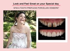 Reinvent yourself with the magic of a Beautiful and Confident Smiles. Find out how we can transform your smile. Porcelain Veneers, Smile Makeover, Melbourne Cbd, Whitening Kit, Cosmetic Dentistry, 18 Months, Tooth, Minimal, Website