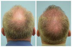 Hair Transplants Dallas | Hair Restoration Plano