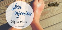 Skin injuries in soccer include strawberries, cuts, abrasions & burns. Learn how to care for each injury to get back to the game faster. Shin Splint Exercises, Shin Splints, Soccer Tips, Soccer Games, Skill Training, Training Tips, Soccer Training, Hamstring Pull, Patellar Tendonitis
