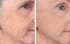 #MicroNeedling with #PRP does wonders for your skin! www.plasticsurgeryassociatesofsd.com