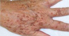 What to do about liver spots (age spots) - Hautbehandlung Age Spots On Face, Brown Spots On Skin, Dark Spots, Age Spot Remedies, Natural Remedies, Liver Spot, Age Spot Treatment, Age Spot Removal, Freckles