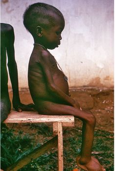 there are children starving all over the world and its not just in other countries. there are plenty of kids starving in america today and they need help. Poor Children, Save The Children, Hungry Children, Kids, Nigerian Civil War, Poverty And Hunger, World Hunger, We Are The World, Baby Kind