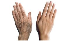 HANDS - WRINKLES & AGE SPOTS REMOVAL