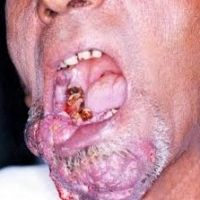 Cancer caused in oral cavity or mouth is known as mouth cancer. Very often cancerous growth is observed in lips and tongue. Dental Hygiene, Help Quit Smoking, Human Oddities, Smoking Effects, Oral Cancer, Stop Smoke, Oral Surgery, Medical Conditions, Salud