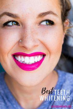 white smile | teeth whitening | at home teeth whitening | Smile Brilliant | Custom teeth Whitening trays | whitening gel | best teeth whitener | At home custom whitening