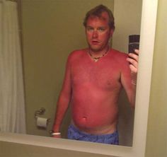 awesome 15 Fucked Up Sunburns That Will Have You Fearing Summer http://www.illholdyourbeer.com/2015/07/14/fucked-up-sunburns/