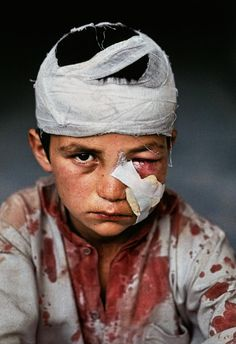 Children of War | Steve McCurry Powerful and haunting realities of the most innocent victims of war.