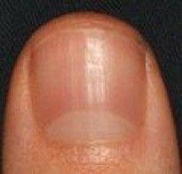 Cómo hacer crecer más fuertes las uñas Cómo acelerar y fortalecer el crecimiento de las uñas