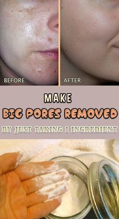 Large pores are most commonly formed because of clogged oil and dirt on the tiny follicles, making your face look uneven. Here are some natural remedies against large pores. Washing your face just with water will only dry it, so your pores will try to com Get Rid Of Pores, Minimize Pores, Clean Pores, Natural Acne Remedies, Home Remedies For Acne, Dry Face Remedies, Blackhead Remedies, Pimples Remedies, Hair Remedies