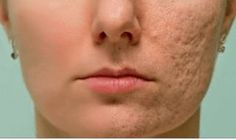 Remedies For Acne How to Get Rid of Scars - How to get rid of acne? How to get rid of acne fast and naturally? Home remedies to get rid of acne naturally. Get rid of acne at home. Skin Care Products, Skin Care Tips, Beauty Products, Home Remedies For Acne, Acne Remedies, Natural Remedies, Scar Treatment, Skin Treatments, Natural Treatments