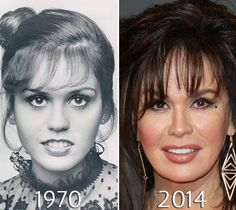 Marie Osmond Eyelid Lift photo (My fave is left Pix also notice of change on her (Past) cute nose & lip to (Y...) now)