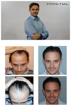 Hair transplantationindocumentedbybeautifulimagesandvideosformenand womenhttp://phaeyde.com/hair-transplantation