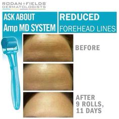 These before and afters are from 11 days of use! Amazing! The Amp MD System by Rodan + Fields is a miracle ya'll!  beauty, anti-aging, skincare, wrinkles, fine lines