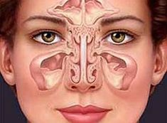 Remedies For Sinus Infection 4 Effective Ways to Use Colloidal Silver to Deal with Pesky Sinus Problems (Including Sinus Cough) Sinus Remedies, Allergy Remedies, Herbal Remedies, Natural Health Remedies, Natural Cures, Natural Healing, Infection Des Sinus, Health Tips, Natural Home Remedies