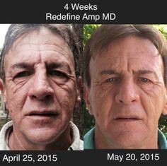 RODAN+FIELDS before and after of our REDEFINE LINE AND AMP MD!! Click on photo to see which regimen/beauty tool is right for YOU! AMAZING RESULTS!