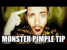 How to Treat a Monster Pimple