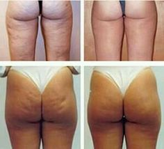 This is amazing, You can have result since the 1 aplication Home Body Wraps, Galvanic Body Spa, Forever Living Products, Nutritional Supplements, Health And Beauty, Herbalism, Nu Skin, Make Up, Weight Loss
