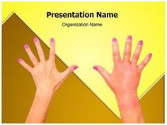 Influenza virus powerpoint presentation template is one of the download our sepsis swelling medical ppt templates now for your upcoming medical powerpoint presentations these royalty free sepsis toneelgroepblik Image collections
