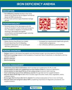 Iron Deficiency Anemia Nursing Care Management and Study Guide Infographic and Poster Online Nursing Schools, Nursing School Tips, Nursing Career, Nursing Tips, Nursing Notes, Nursing Programs, Nursing Procedures, Nursing Cheat Sheet, Lpn Programs