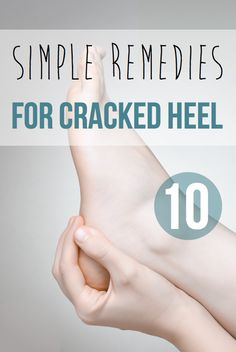 Cracked heels are a very common problem. Cracked heels can be a mere aesthetic concern to some, but to others it can be a painful problem. Fortunately though there are various remedies for cracked heel that you can try out. Let us take a closer look at these remedies, most of which can be prepared really easily at home... Read more >>> https://54health.com/health/10-simple-remedies-cracked-heel/ #healthy #homeremedies #heel