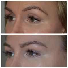 """Before and after photos of a young female with hollowness around the eyes (""""sunken eyes"""", dark circles"""") who received eyelid filler injections in upper and lower eyelids in the office for noninvasive eyelid rejuvenation."""