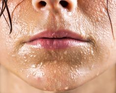 extreme sweating on the face is for many people a stigma and diminish their quality of life