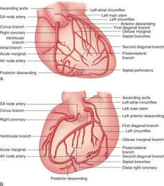 coronary arteries | Anesthesiology | Pinterest | Anatomy, Medical ...