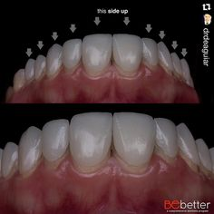 Excelente foto tomada durante el try in por @drdeaguiar  #veneers #odontologia #tecnicadental #dentllab #odontology #dental #dentist #dentaltechnician #dentalphotography #dentistry by wiso_wsh Our Dental Veneers Page: http://www.lagunavistadental.com/services/cosmetic-dentistry/veneers/ Other Cosmetic Dentistry services we offer: http://www.lagunavistadental.com/services/cosmetic-dentistry/ Google My Business: https://plus.google.com/LagunaVistaDentalElkGrove/about Our Yelp Page…
