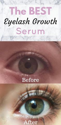 Breakthrough Eyelash Growth Serum! Grow your eyelashes in less than 2 WEEKS!! Zero side-effects!!