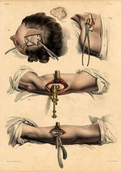 illustrations of the human body early surgery - Google Search
