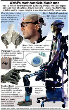 Worlds First Bionic Man Worth $1