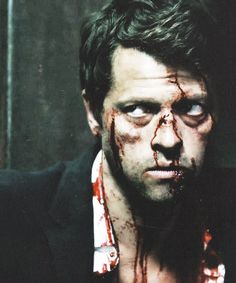"""Bloody Cas """"Holy Terror"""" (is it normal that i think he looks so good like this? Winchester Boys, Winchester Brothers, Destiel, Johnlock, Supernatural Fandom, Super Natural, Misha Collins, Superwholock, Best Shows Ever"""