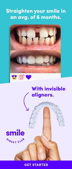SmileDirectClubTake the free quiz to see how it works. Get your dream smile… - zahnpasta Teeth Care, Skin Care, Smile Teeth, Face Care, Invisalign, Teeth Straightening, Warts, Oral Hygiene, Cool Ideas