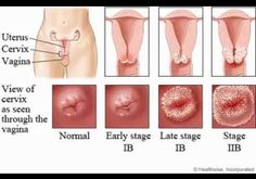 8 Symptoms Of Cervical Cancer - Cervical cancer is a malignant cancer caused by human papillomavirus. It affects the neck or lower part of the female uterus called the cervix. --- http://romanticupdates.com/2015/05/eight-symptoms-of-cervical-cancer/