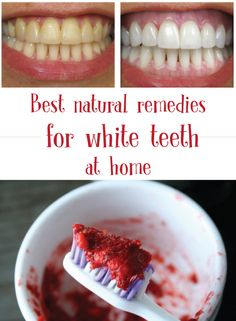 White teeth - Best natural remedies for white teeth at home