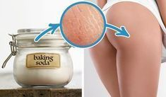 Are your frustrated with lumpy cellulite. Take it off with your cellulite removal Baking Soda And Lemon, Baking Soda Uses, Stretch Mark Remedies, Sodium Bicarbonate, Tips Belleza, Natural Cures, Healthy Skin, Healthy Bodies, Home Remedies
