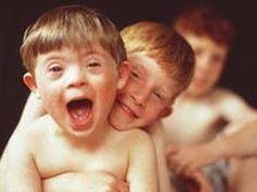 Resultado de imagem para educação infantil atividades com portadores de down
