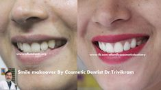 Smile makeovers by U.K trained Expert Cosmetic dentist Dr Trivikram Rao (Dr Vikr. Cosmetic Dentistry Cost, Dental Veneers, Smile Dental, Smile Makeover, Teeth Care, Dentist In