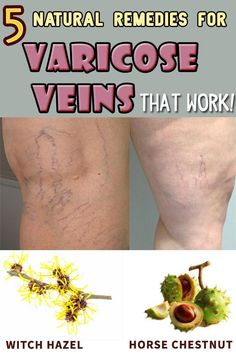 Veins are the organs that help the blood circulate all over your body. Prevent the varisose veins by following these tips.
