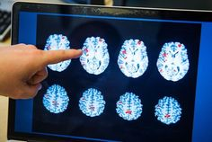 Addiction changes the brain in lasting ways, and some brains are more vulnerable than others.