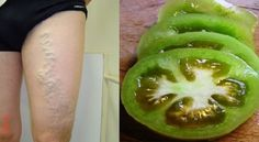 Here's How To Cure Varicose Veins With The Help Of Tomato