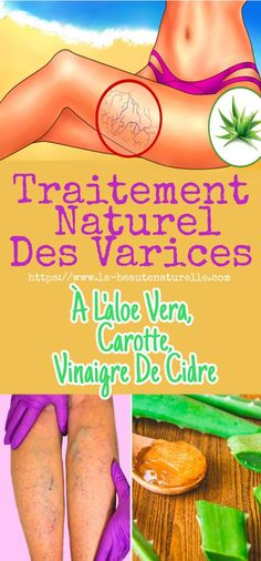 Natural treatment of varicose veins with aloe vera carrot cider vinegar Combattre la cellulite Aloe Vera, Combattre La Cellulite, Varicose Veins, Natural Treatments, Detox, The Cure, Health Fitness, Circulation Sanguine, Cider Vinegar