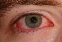 Curing Pink Eye Or Conjunctivitis Naturally Using Home Remedies  Eww.  But you never know who might need this info.... :/